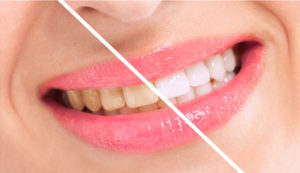 Restore a bright smile with teeth whitening in Columbia.