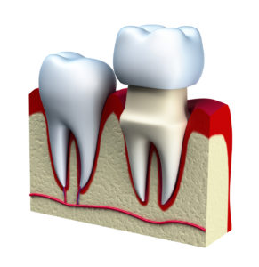 Model of dental crown